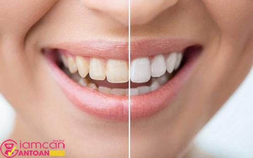 Răng trắng giúp chị em tự tin hơn trong giao tiếp